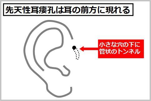 先天性耳瘻孔は耳の前方に現れる