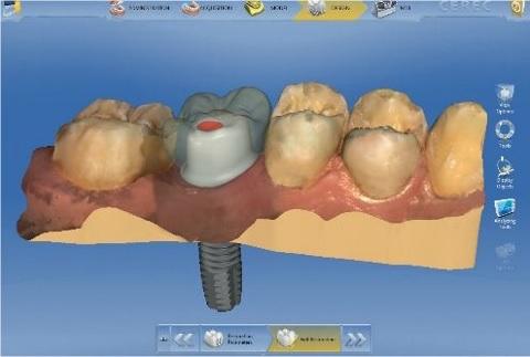 セラミック歯が1日で治療完了するデジタル歯科