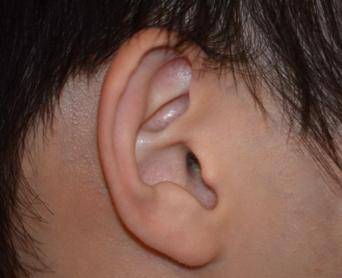 聴力検査で高さの違う2種の音を聞かされる理由