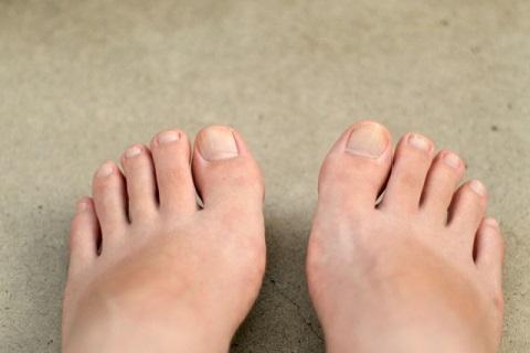 梨状筋ストレッチ+足指ポンプで冷え性が治った