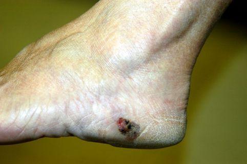 足の裏のほくろが悪性かがわかる4つのポイント