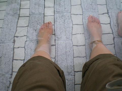 足底腱膜炎(そくていけんまくえん)の治療法