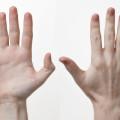 手のひらのほくろがメラノーマかを判断する方法