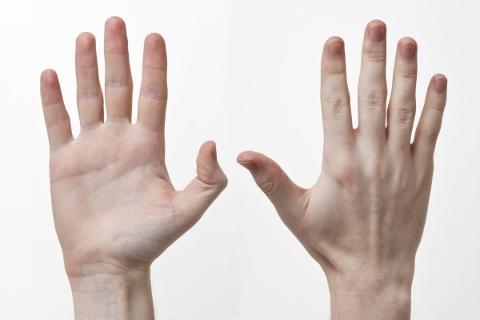 甲状腺機能亢進症の症状は伸ばした手でわかる