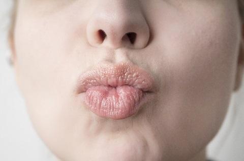 ドライマウスを防止する唾液腺トレーニングとは