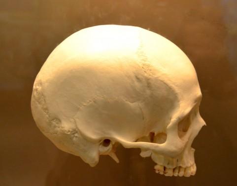 歯性上顎洞炎の症状は「片方だけの鼻づまり」