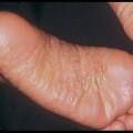 膿栓が原因の「掌蹠膿疱症」