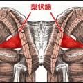 坐骨神経痛の原因は脊椎でなくお尻の梨状筋かも