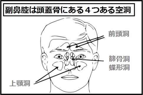 好酸球性副鼻腔炎がおこる場所