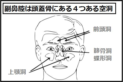 片方だけの鼻づまりは副鼻腔真菌症
