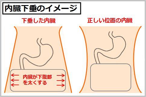 内臓下垂がぽっこりお腹の原因