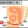 頻尿の原因は骨盤底筋のゆるみによる膀胱の下垂