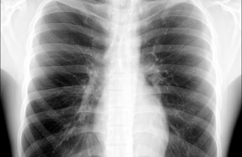 x-ray (480x311)